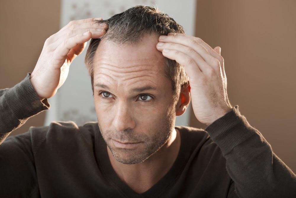 Alopecia cauzată de o boală autoimună vs căderea de păr normală